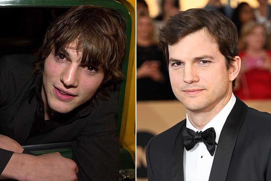 Ashton Kutcher chirurgia estetica uomo rinoplastica