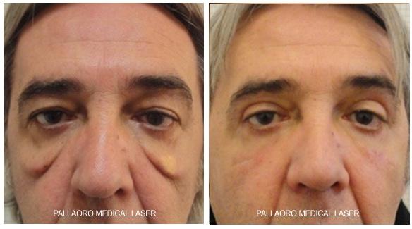 Chirurgia Estetica uomo: Foto blefaroplastica