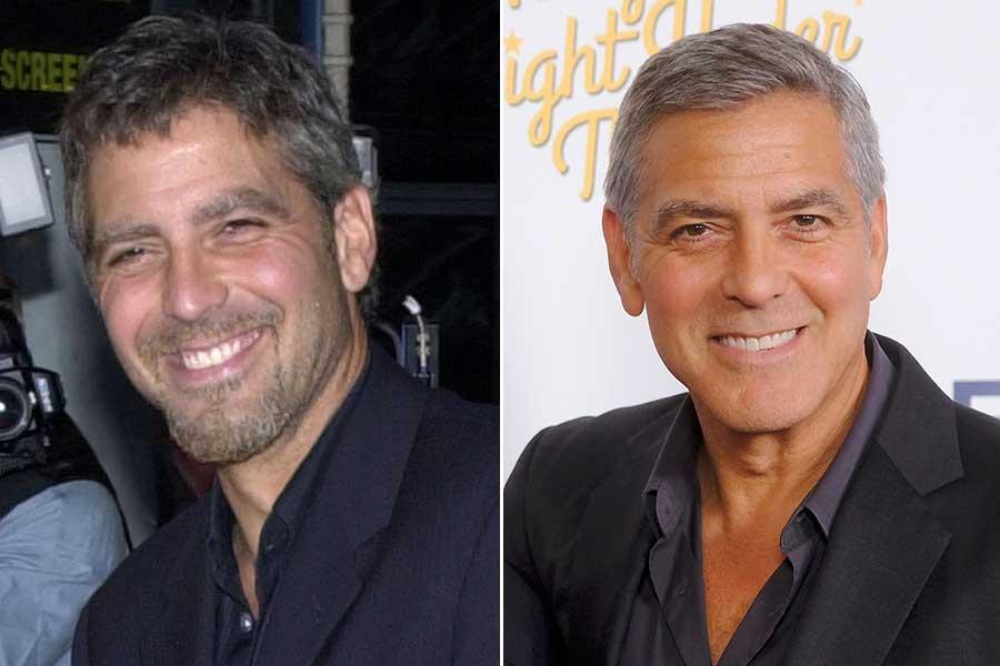 George Clooney chirurgia estetica uomo blefaroplastica