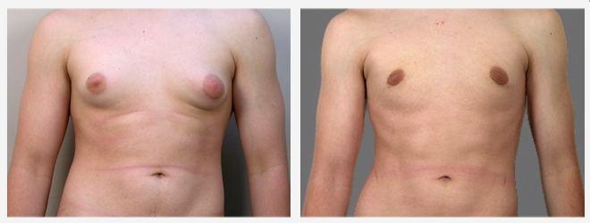 Chirurgia Estetica uomo: Foto ginecomastia