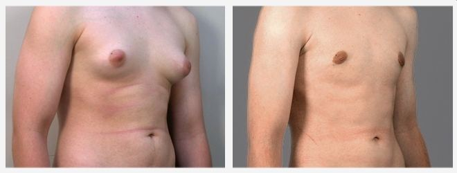Chirurgia Estetica uomo: Foto ginecomastia laterale