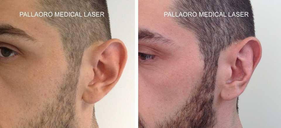 Chirurgia Estetica uomo: Foto otoplastica