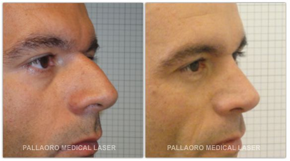 Chirurgia Estetica uomo: Foto rinoplastica
