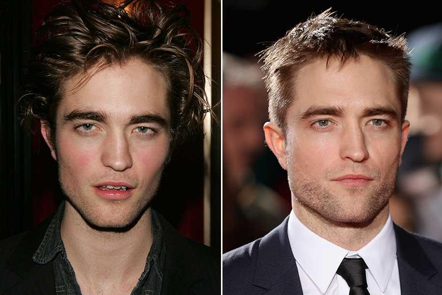 Robert Pattinson chirurgia estetica uomo rinoplastica