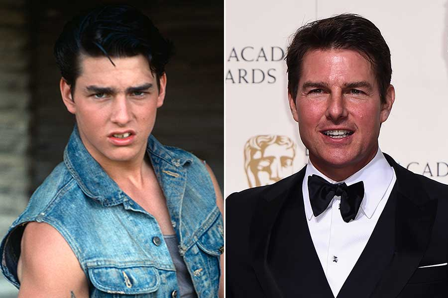 Tom Cruise chirurgia estetica uomo