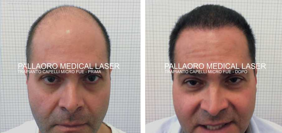 Chirurgia Estetica uomo: Foto trapianto capelli